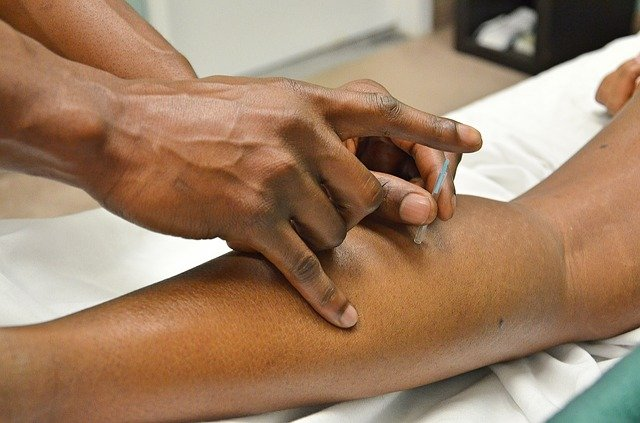 A acupuncture needle in the arm of a client